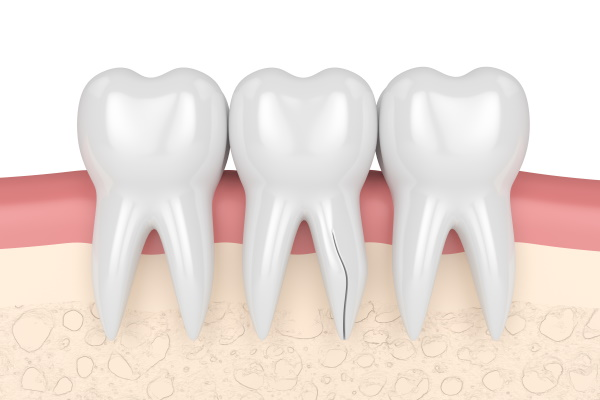 3d render of gums with cracked tooth root over white background. Vertical fracture. Different types of broken teeth concept.コピー - コピー