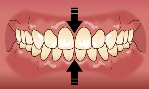 歯列接触癖